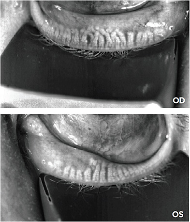 Meibography showing meibomian gland drop out with structural gland changes.