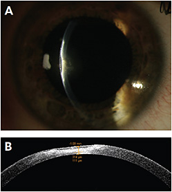 FIGURE 4. A and B: AS-OCT revealing corneal pathology thickness.
