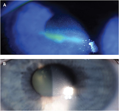 CASE 1: Note this patient's severe exposure keratopathy before (A) and after amniotic membrane graft (B).