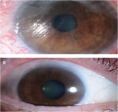 CASE 2. Note this patient's conjunctival growths (A), and the improvement of epithelial cell regeneration (B).