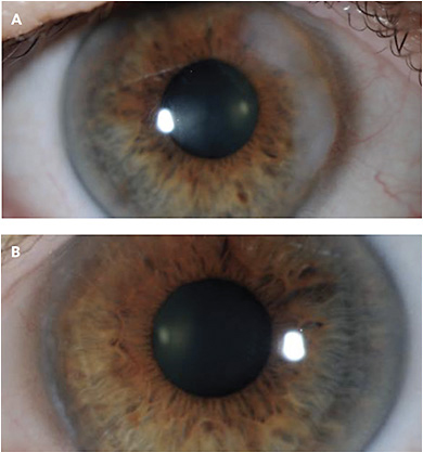 "CASE 3. Note this patient's ""growing white spot"" (A), and her clear and pristine eye post amniotic membrane graft (B)."