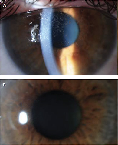 CASE 4. Note this patient's neurotrophic keratitis (A), and its resolution post amniotic membrane graft (B).