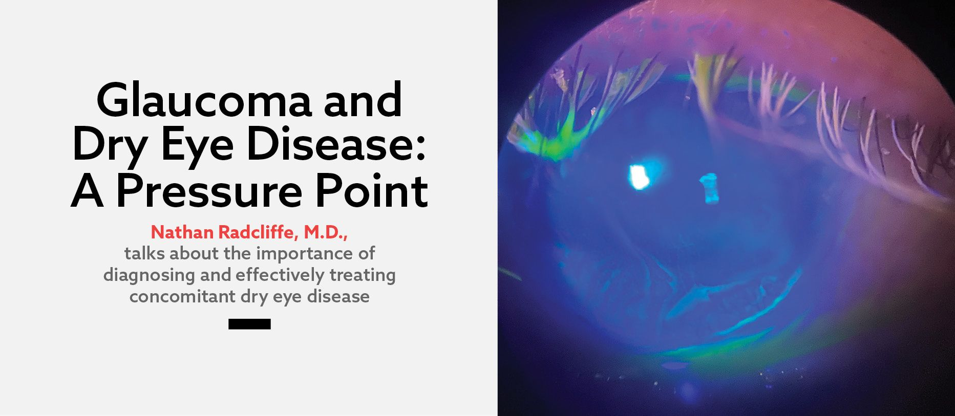Glaucoma and Dry Eye Disease: A <i>Pressure</i> Point
