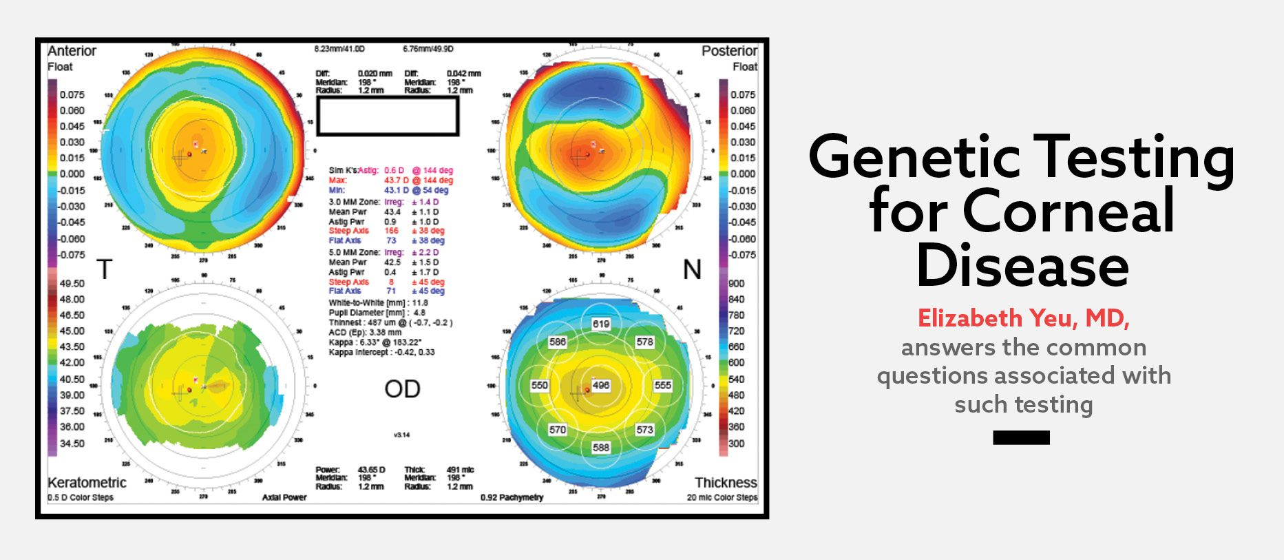 Genetic Testing for Corneal Disease